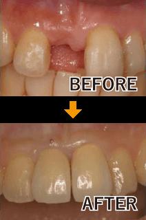 単独歯の治療例